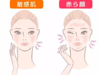 敏感肌烂脸必看!创尔美胶修护面膜搭救你!